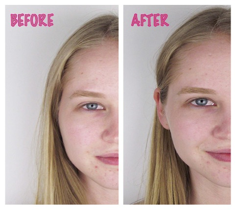 Benefit Before and After